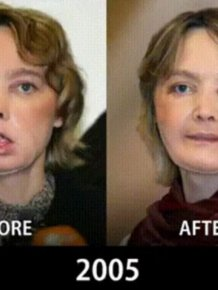 How Face Transplants Have Evolved