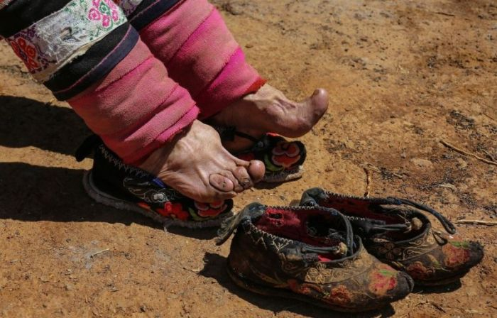 Chinese Women Who Walk With Deformed Feet