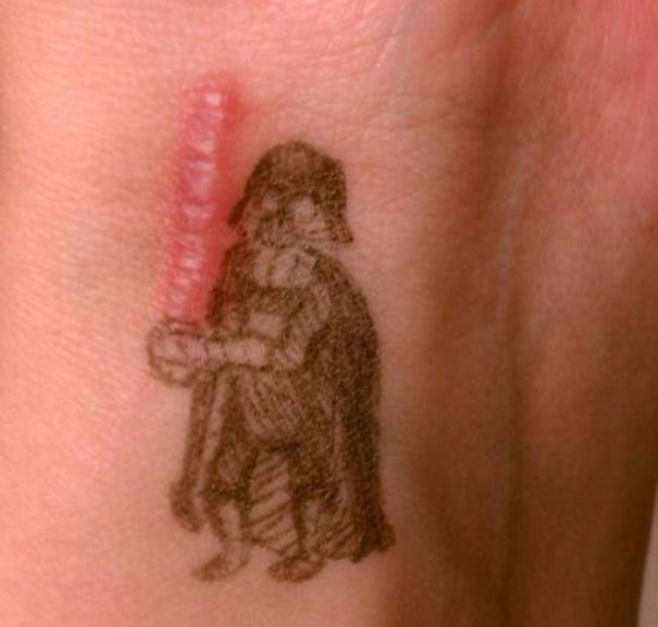 Tattoos Can Turn Scars Into Works Of Art