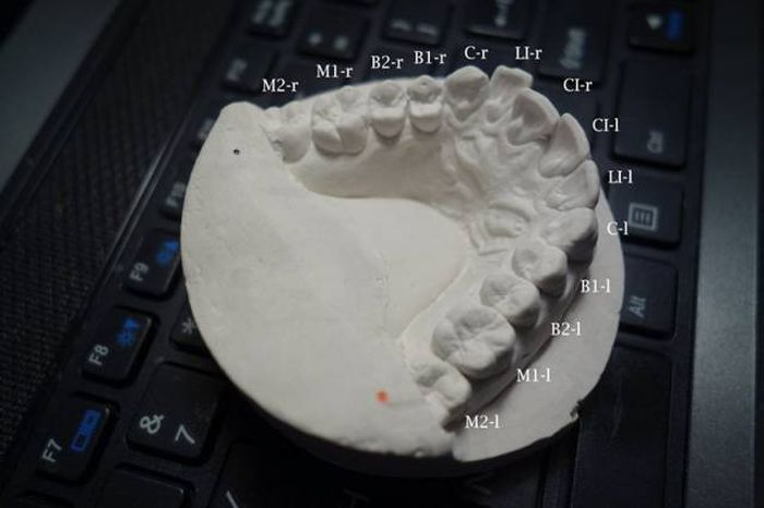 Student Proves You Don't Need Thousands Of Dollars To Fix Your Teeth