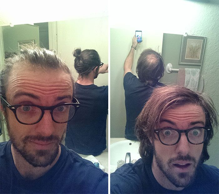 Men Are Trying To Hide Baldness With Man Buns Now
