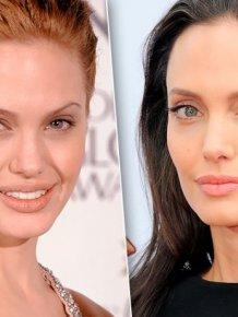 Celebrities Who Had Work Done On Their Cheekbones