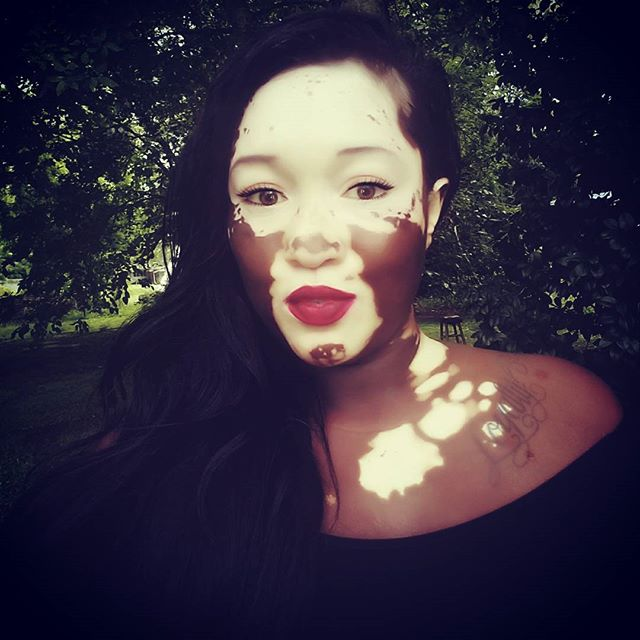 Woman With Vitiligo Becomes A Model