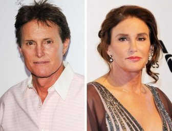 Celebrity Before And After Plastic Surgeries