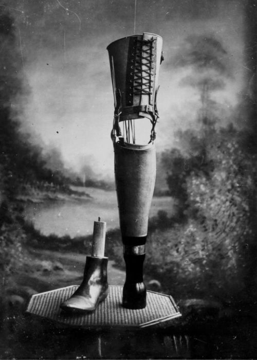 Prostheses From 19th Century