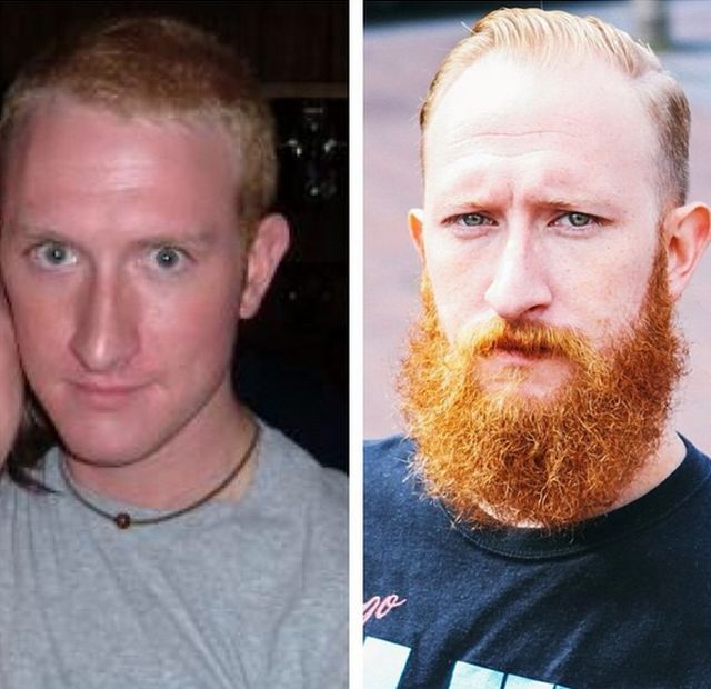 Men With And Without Beards