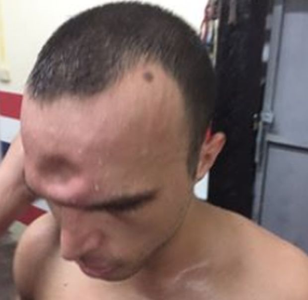 Muay Thai Fighter Suffers Horrific Injury After Getting Elbowed In The Head