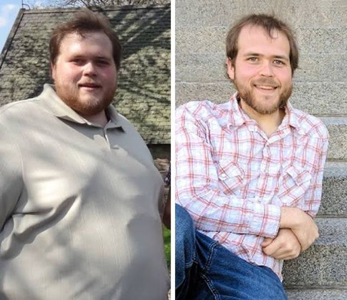 Before And After Losing Weight