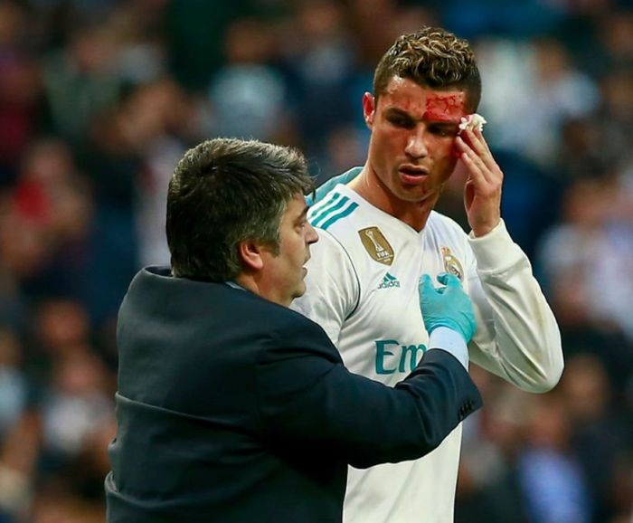 Ronaldo Had To Get A Better Look At His Cut After Getting Kicked In The Head