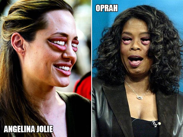 Celebrities With Mouth Eyes