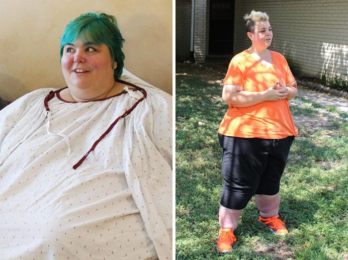 Unbelievable Before & After Transformation Photos