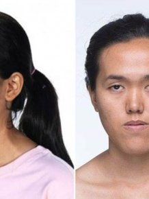 Plastic Surgery Does Make Miracles