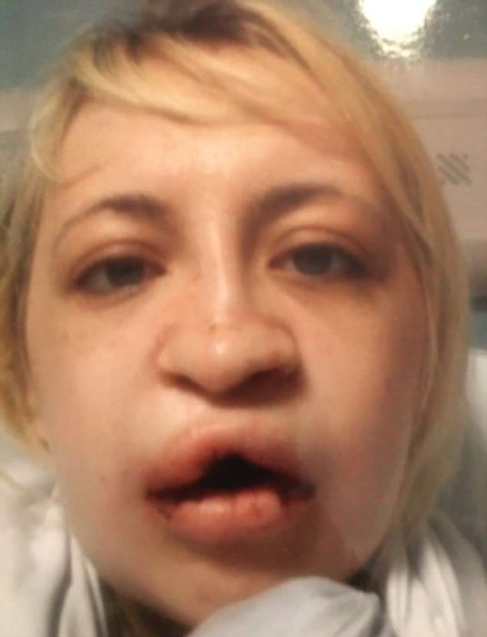 It Took 10 Operations For A Girl With A Wolf Mouth To Change
