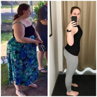 This Girl Lost A Lot Of Weight But There Is Another Problem Now