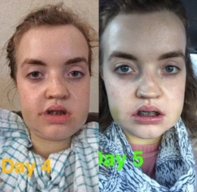 Before And After A Plastic Surgery