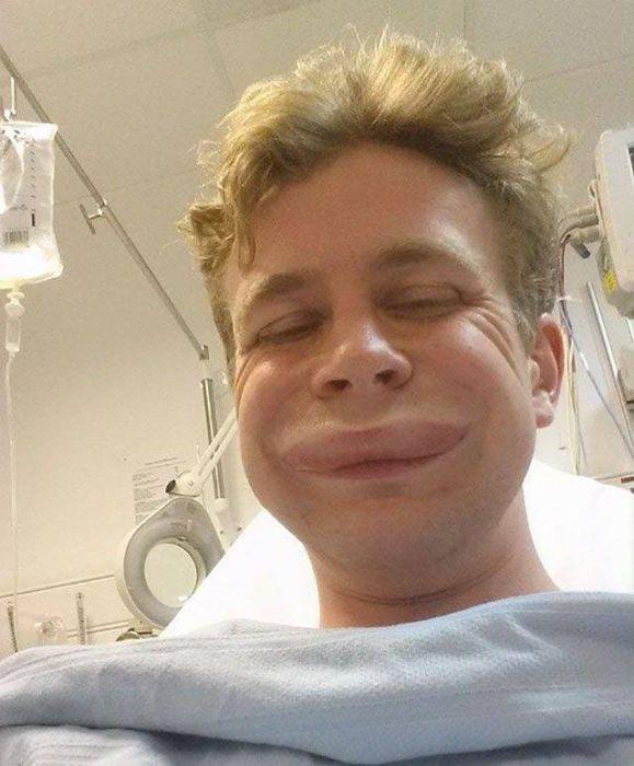 When Allergy Strikes