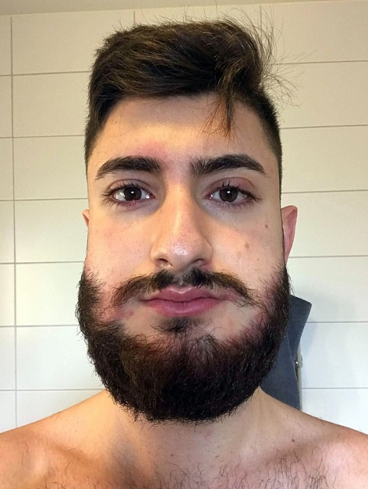 This Man Looks Like A Hamster After He Dyed His Beard