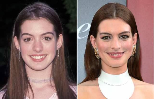 How Famous Actors Age