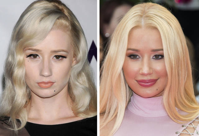 Celebrities Before Plastic Surgery