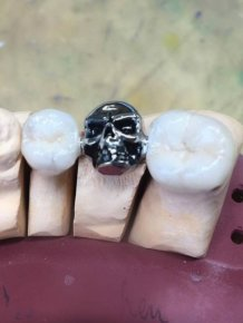 Skull Tooth Crowns