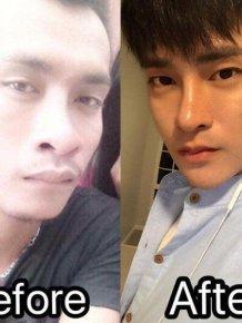 Thai Man Undergoes 30 Cosmetic Procedures to Make Himself Look Korean