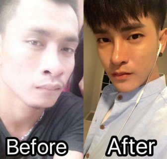 Thai Man Undergoes 30 Cosmetic Procedures to Make Himself Look Korean