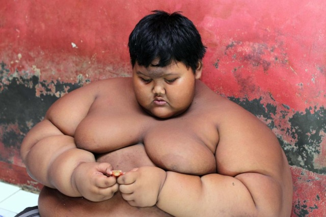 Indonesia's Fattest Kid Lost Half His Body Weight