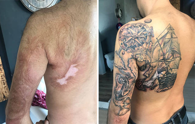 How To Cover A Scar With Tattoo