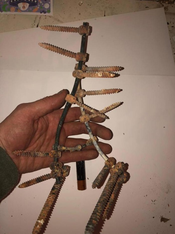 Surgery Hardware From One Guy's Dad's Body After The Cremation