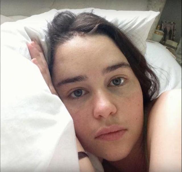 Emilia Clarke Shares Photos From Hospital Treatment During Brain Aneurysm Ordeal