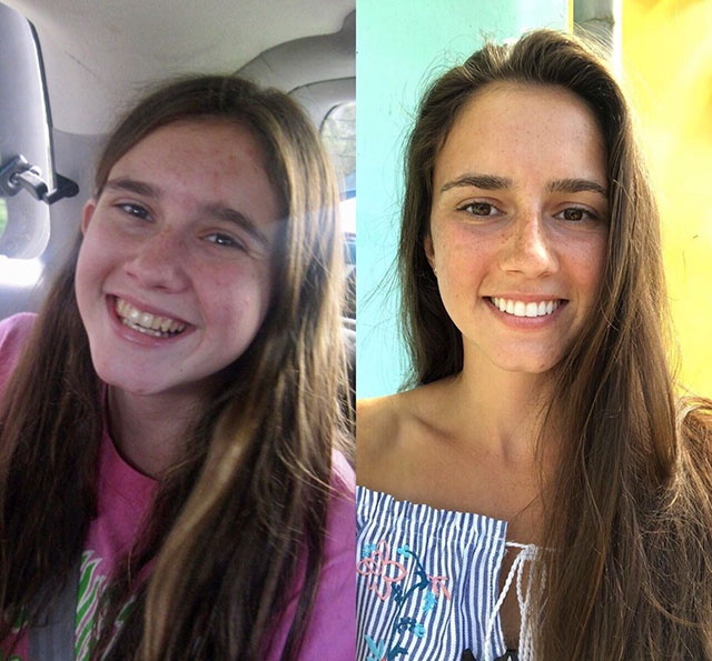 """Amazing Transformation Of """"Ugly Ducklings"""""""