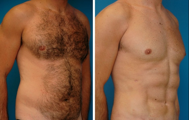 Plastic Surgeons Have Developed A New Liposuction Technique That Creates Chiseled Abs
