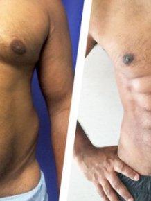 Plastic Surgeons Have Developed A New Liposuction Technique That Creates Chiseled Abs