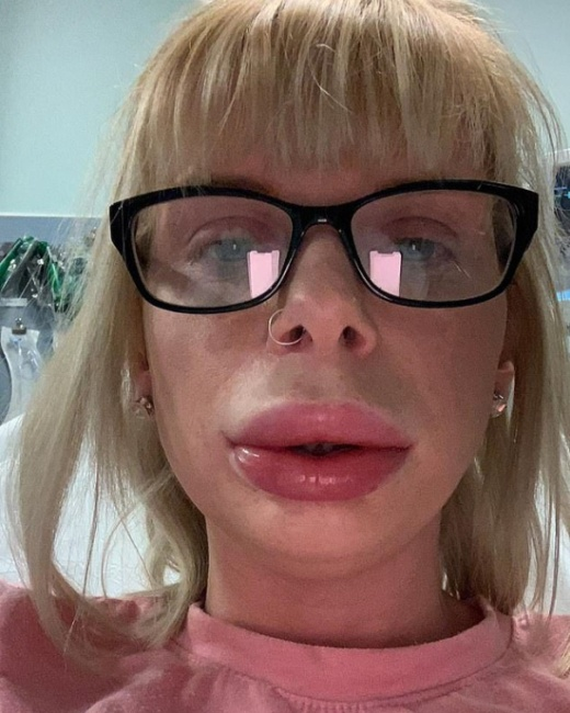 Woman Was Left With Swollen Lips Because Of Numbing Cream Used As Part of At-home Lip Fillers