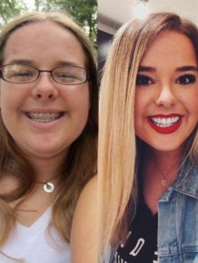 Ugly Ducklings Then And Now