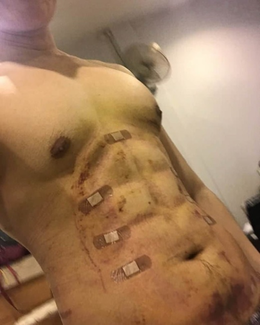 24-year-old Man Spent $4,000 On Surgery To Have Fake Stomach Muscles