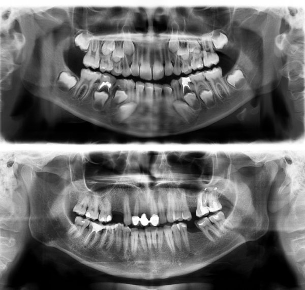 Interesting X-Rays And Scans