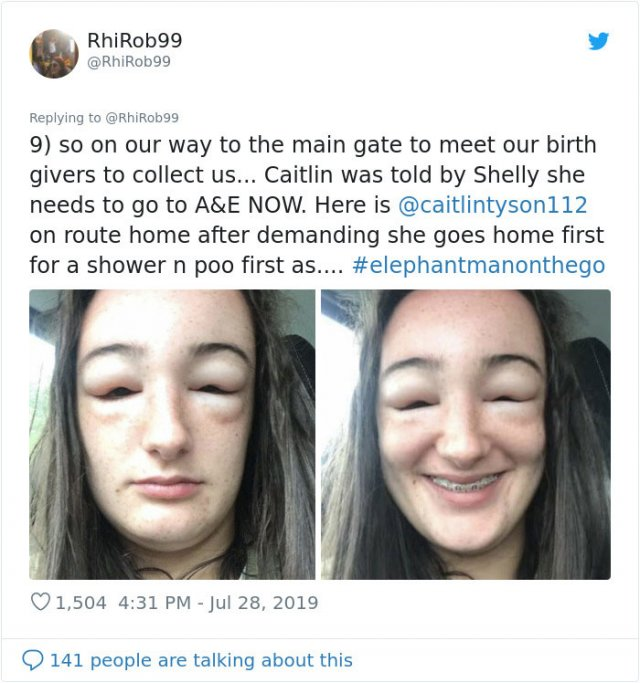 Girl Starts To Look Like An Alien Due To Random Head Swelling