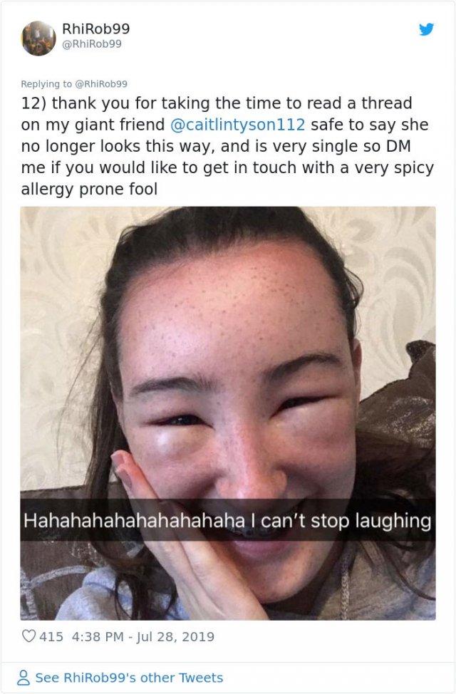 Girl Starts To Look Like An Alien Due To Random Head Swelling