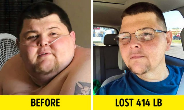 Before & After Weight Loss