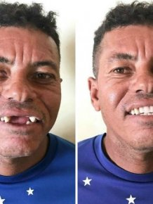 Brazilian Dentist Travels To Treat The Teeth Of Poor People For Free