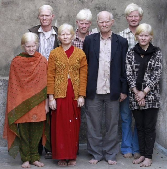 People With Unusual Appearance