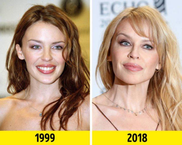 Stars Of The '90s Then And Now