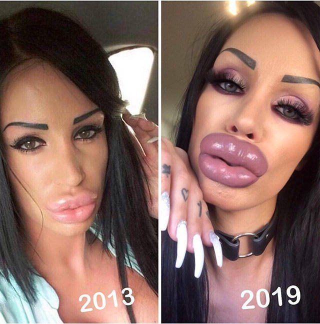 Plastic Surgery Went Wrong