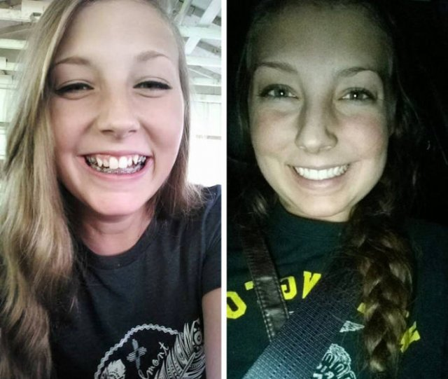 Then And Now: People Fix Their Smiles