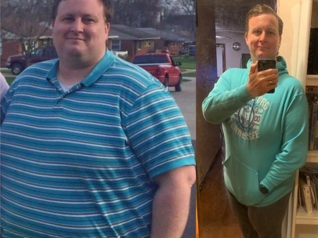 Then And Now: Incredible Weight Loss
