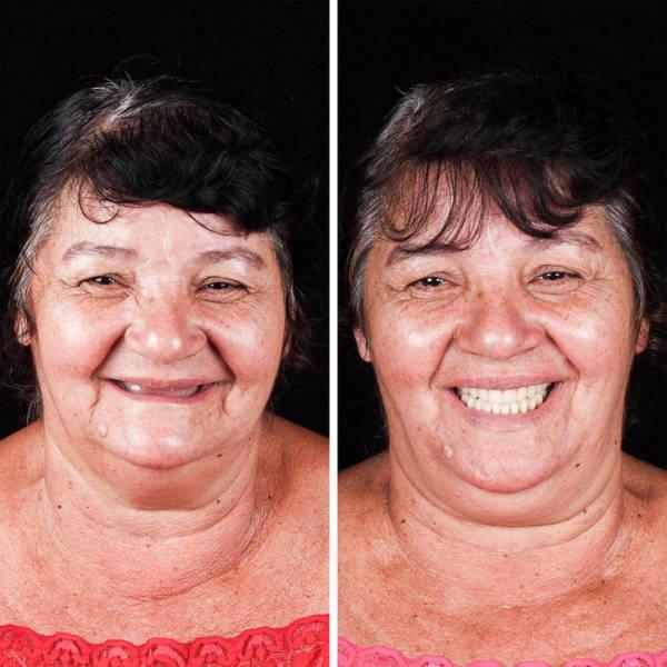 Brazilian Dentist Treats Poor People For Free