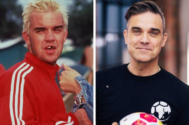 Celebrities: Then And Now, part 15