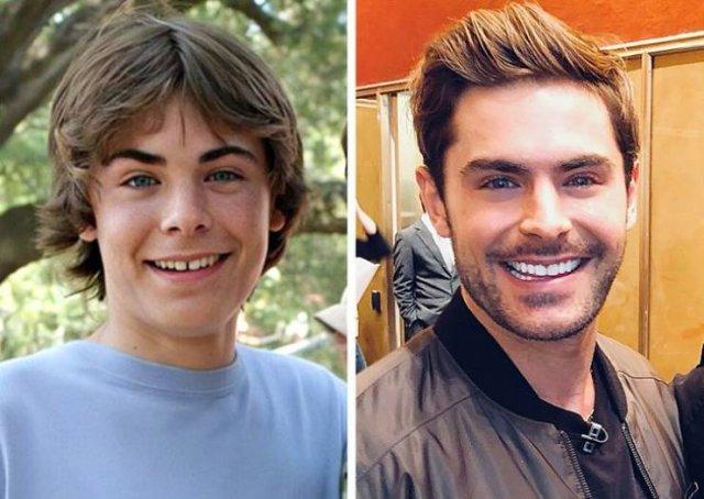 Celebrity Smiles Changes