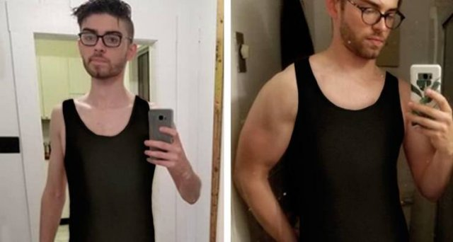 These People Won The Battle With Anorexia